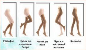 Венозное расширение вен на ногах лечение
