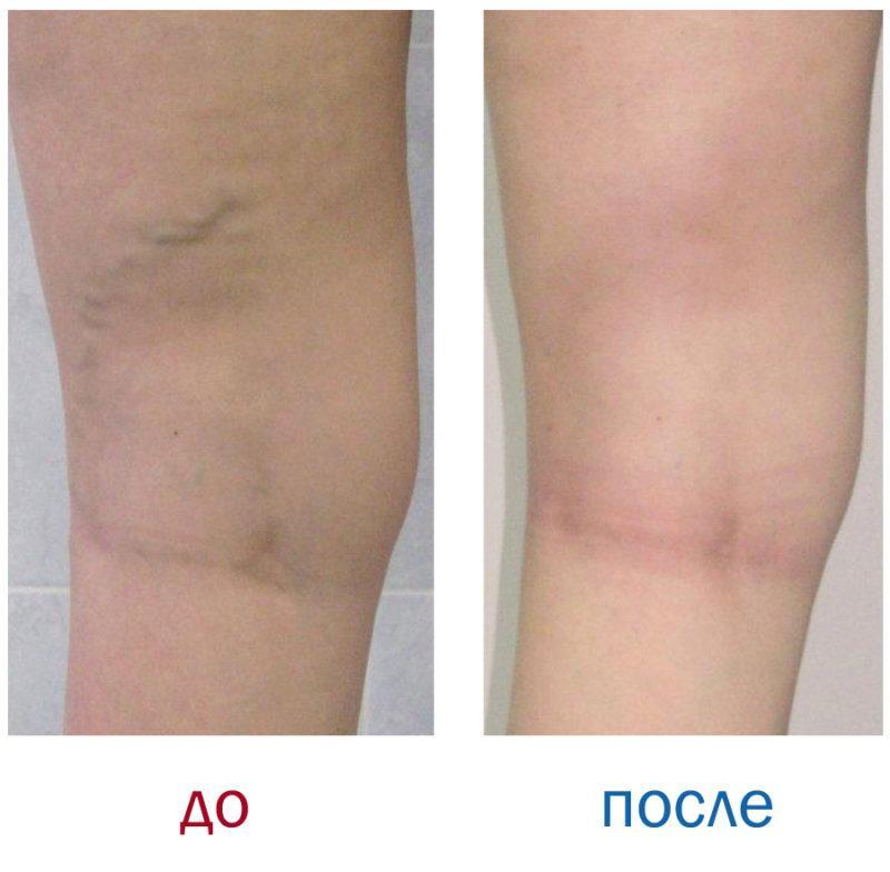 Операция на удаление вен на ногах