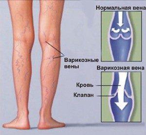 Таблетки от варикоза вен на ногах список