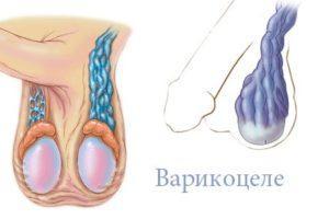 Операция варикоцеле у мужчин