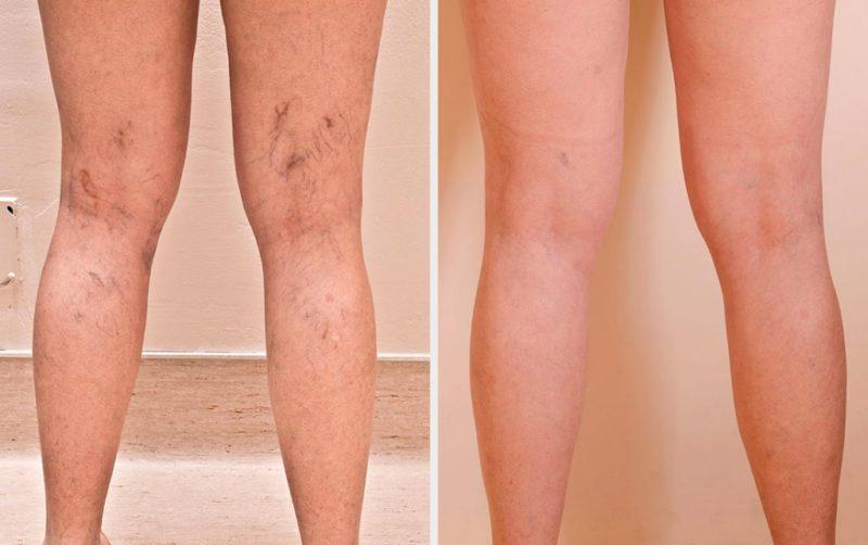 Как делают операцию на вены на ногах