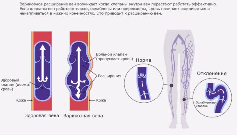 как лечить варикоз без операции