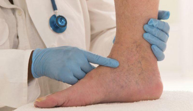 болезнь тромбофлебит лечение