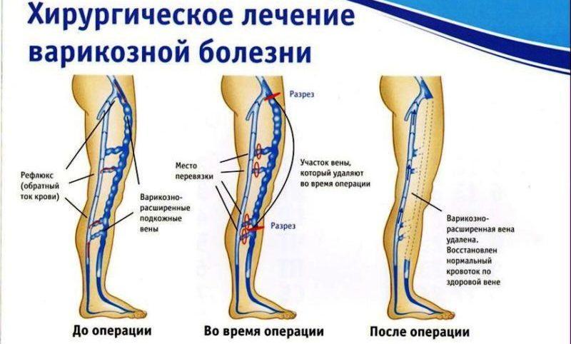 варикоз вен на ногах лечение лазером