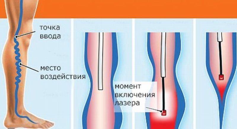 лазерное лечение варикозного расширения вен