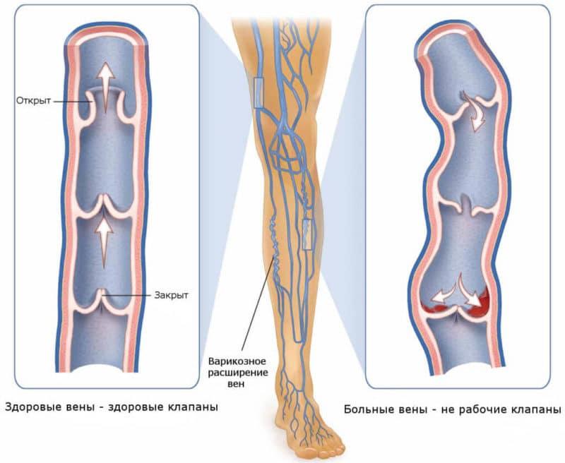 питание при варикозе вен на ногах