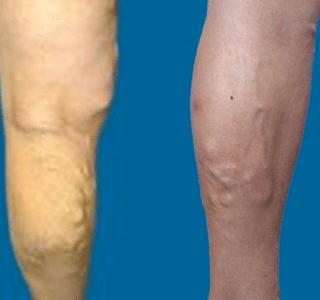 виды варикоза на ногах фото
