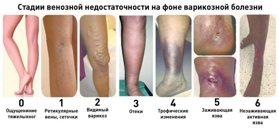 виды варикоза на ногах