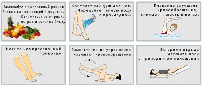симптомы варикоза на ногах у женщин