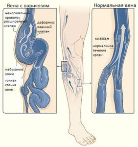 Пофилактика варикоза вен на ногах препараты