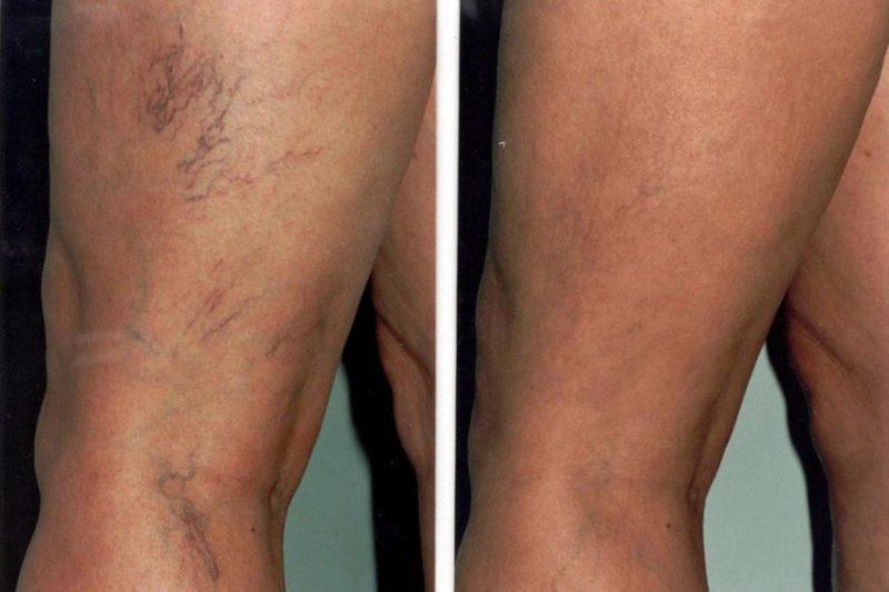 Склерозирование вен на ногах