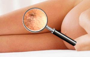 Варикоз при беременности на ногах что делать
