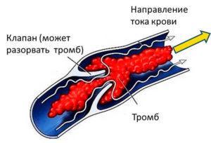Болезнь сосудов ног симптомы и их лечение