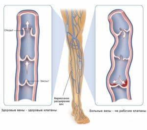 Что делать если болят сосуды на ногах