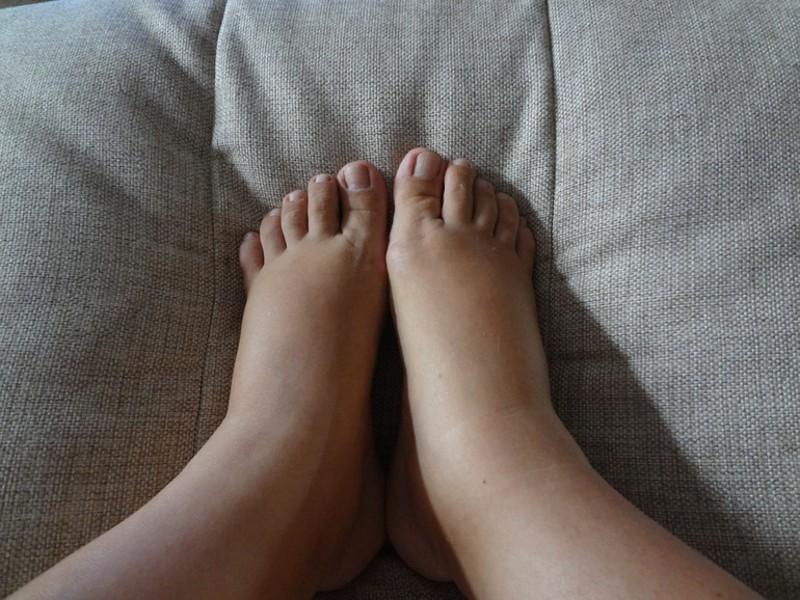 Сосуды ног заболевания какие бывают