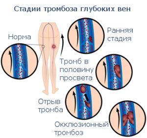 Поверхностный тромбофлебит нижних конечностей фото