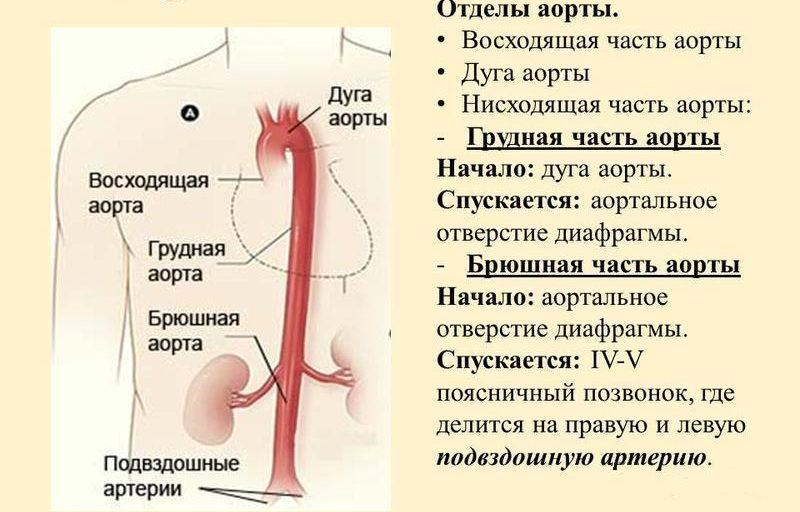 аневризм аорты брюшной полости