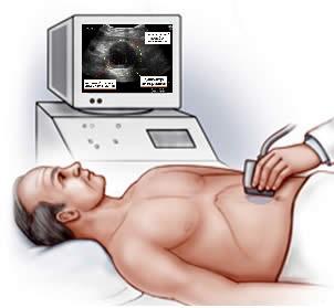 лечение аневризма брюшной аорты