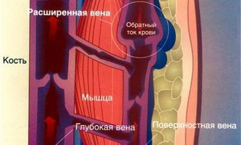 эффективный крем от варикоза вен на ногах