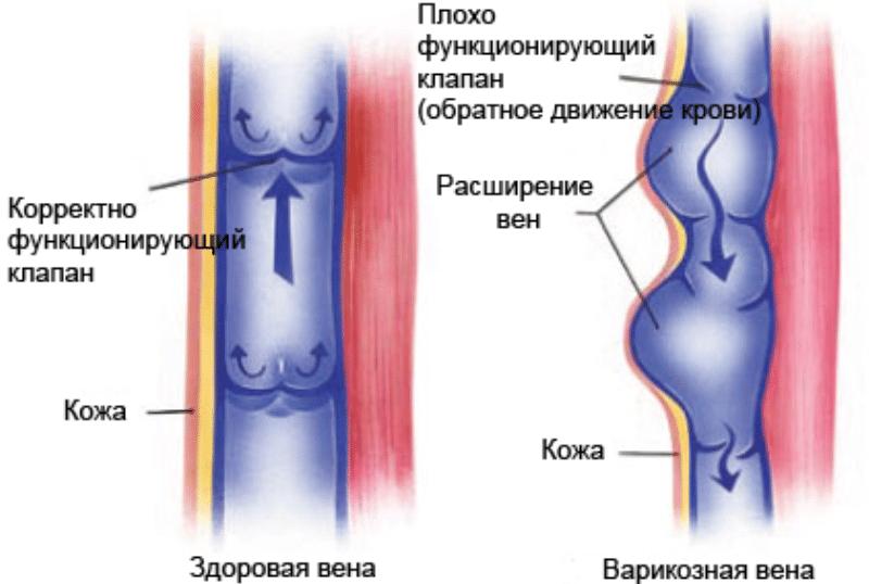 лечение варикоза хозяйственным мылом отзывы