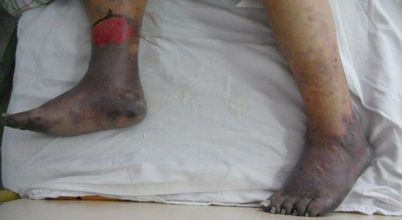 лечение облитерирующего эндартериита нижних конечностей