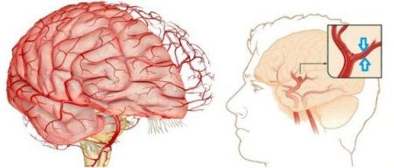 Спазм сосудов: причины, симптомы и лечение, как быстро снять спазм ...