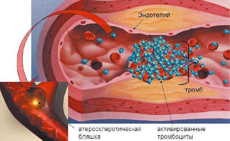 тромбоэмболия что это такое