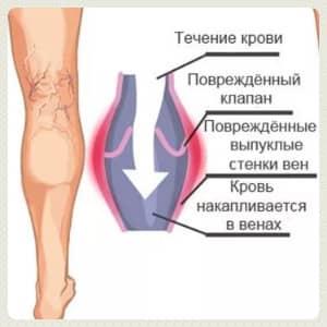 тромбоэмболическая болезнь