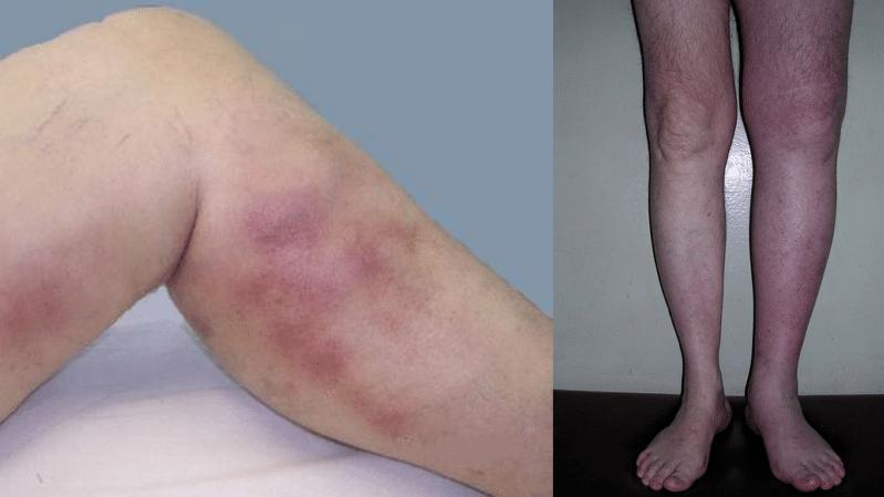 Тромбоэмболия: что это такое, симптомы, фото и насколько она ...