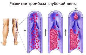 Как выглядит воспаление глубоких вен