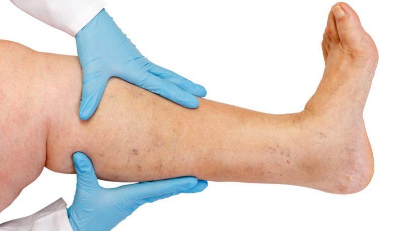 венозный тромбоз симптомы и признаки