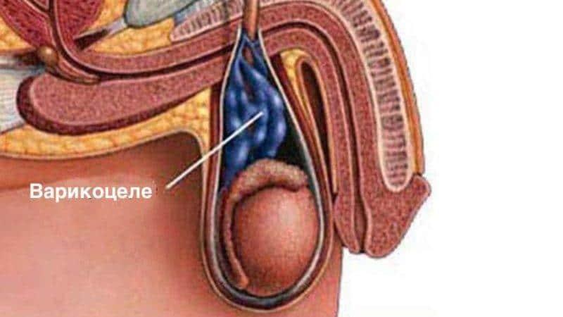 Причины возникновения варикоцеле яичка у мужчин