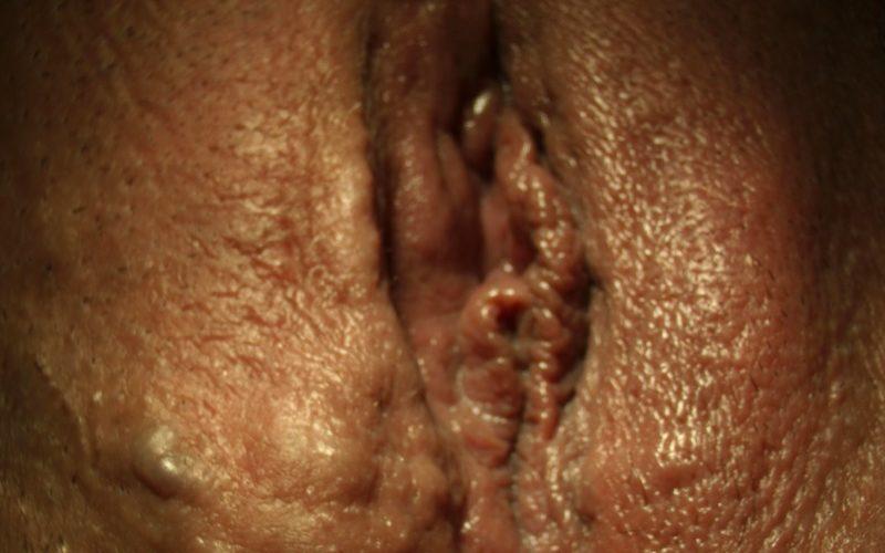 Варикоз влагалища при беременности