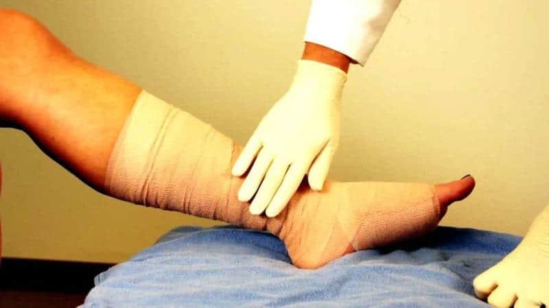 венозная недостаточность нижних конечностей симптомы лечение