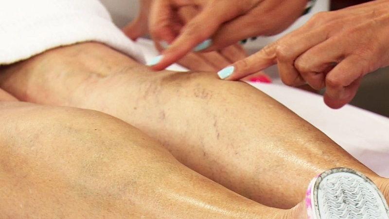 хроническая венозная недостаточность нижних конечностей лечение