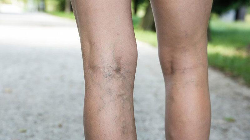 клапанная недостаточность вен нижних конечностей лечение