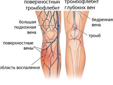 сильно видны вены на ногах что делать