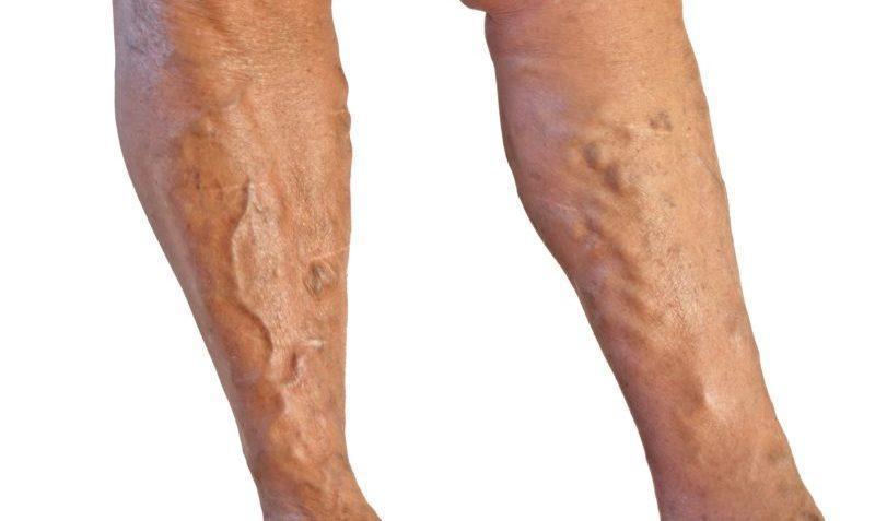 Что делать если выступают вены на ногах