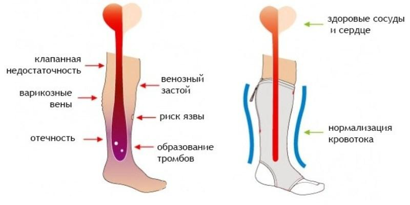 ортопедические гольфы от варикоза