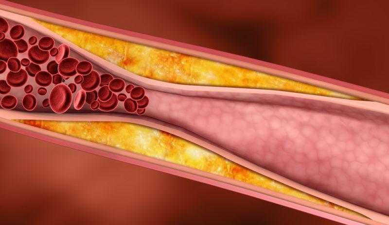 норма холестерина в крови повышена