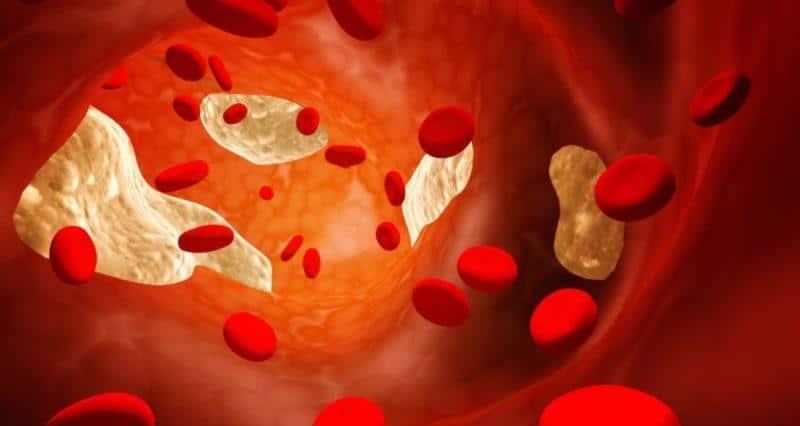 Лечение повышенной нормы холестерина в крови
