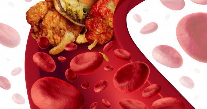 холестерин в крови повышена причины как лечить