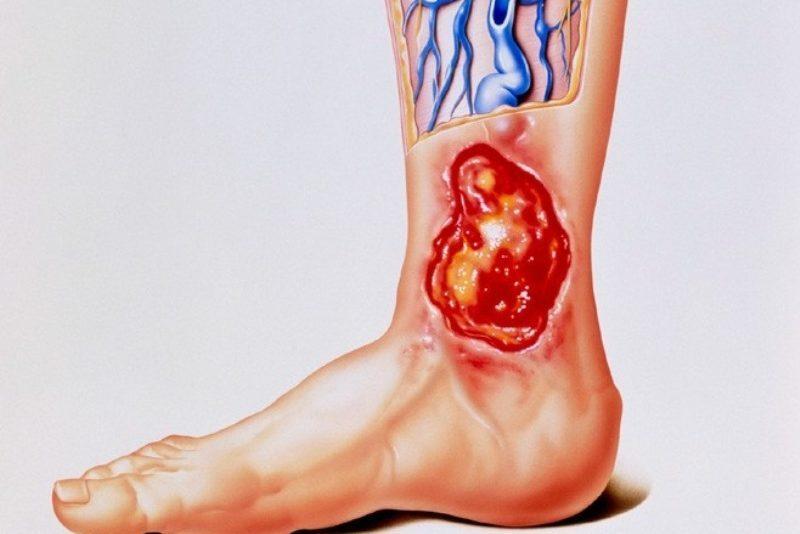 лечение трофических язв нижних конечностей препараты
