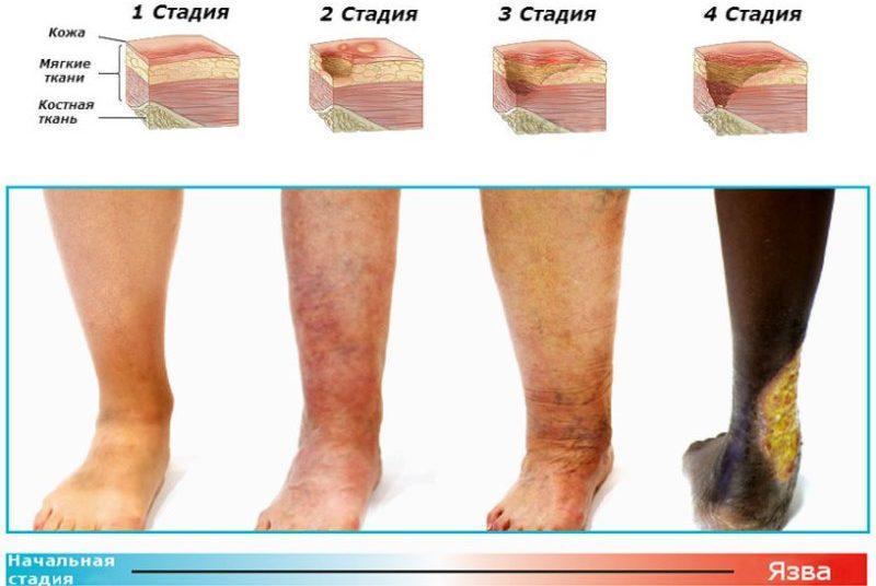 как лечить трофические язвы на ногах