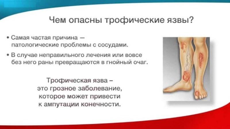 трофические язвы нижних конечностей симптомы
