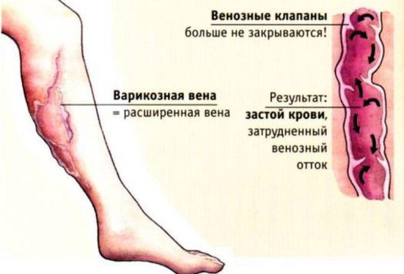 лечение варикоза вен на ногах мед препаратами