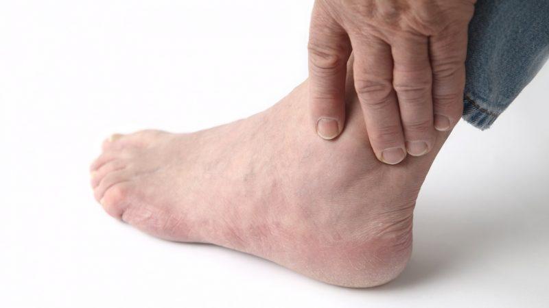 как лечить облитерирующий атеросклероз нижних конечностей