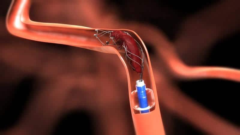 Отрыв тромба: что это такое, причины отрыва, блуждающий тромб ...