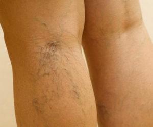 Причины варикоза вен на ногах у женщин
