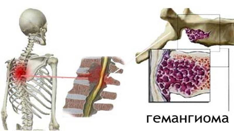 что такое гемангиома позвоночника